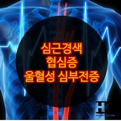 순환기 질환의 종류와 증상, 필요영양소 : 심근경색, 협심증, 울혈성 심부전증