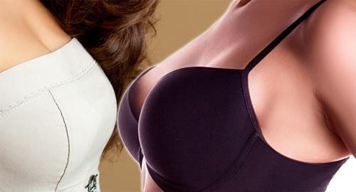 가슴확대수술,가슴사이즈
